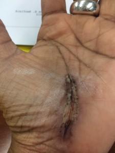 CTS-stitchesout